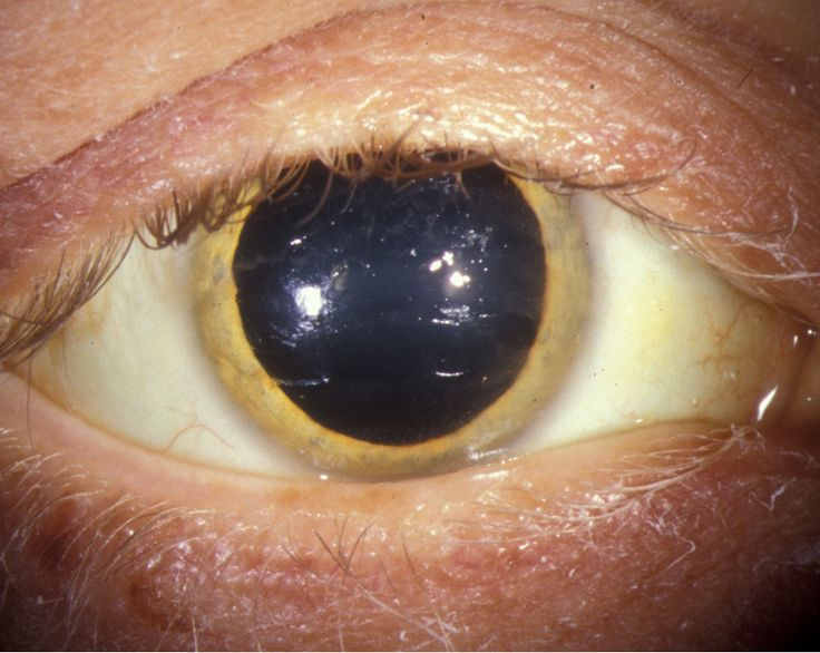 #copper ring #eyes Wilson Disease: Its Medical And Clinical Implications, Diagnosis, Presentations, Course, Prognosis And Treatment