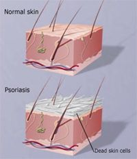Psoriasis Revolution - Psoriasis is an immunemediated disease that affects the skin. It is typically a lifelong condition. There is currently no cure, but various treatments can help to control the symptoms. Psoriasis occurs when the immune system mistakes a normal skin cell for a pathogen, and sends out faulty signals that cause overproduction of new skin cells. Psoriasis is not contagious - REAL PEOPLE. REAL RESULTS 160,000+ Psoriasis Free Customers