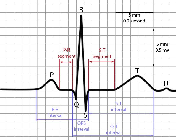 The PR Interval indicates AV conduction time. In this step you should measure the interval from where the P wave begins until the beginning of the QRS complex. Calipers, marked paper or counting sm...