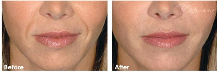 Restylane filler in the nasolabial folds (smile lines).