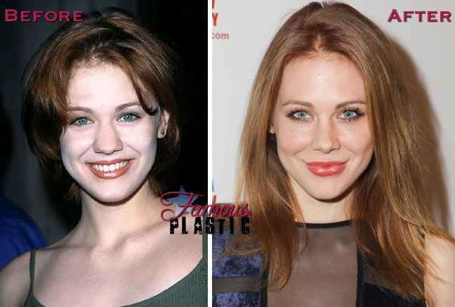 Maitland Ward Nose Job Plastic Surgery Before And After In