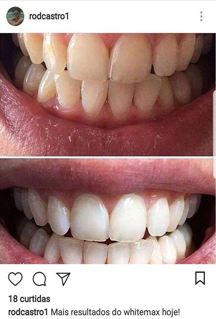 Whitemax Clareador Dental 100 Natural White Max Dicas