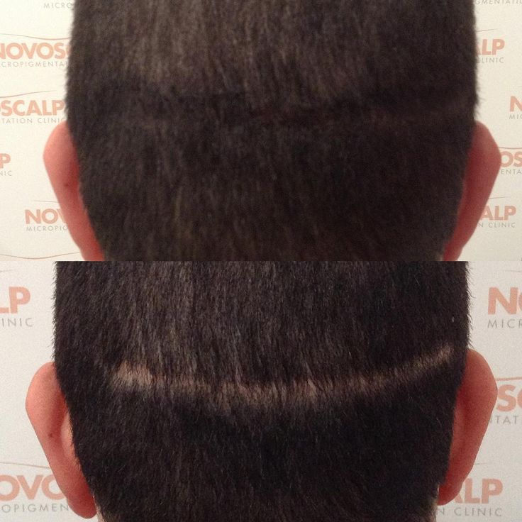 ITS ALL IN THE AESTHETICS. Hair transplant scars can be concealed using Scalp Micropigmentation to the point of being unnoticeable on any length of hair or shaved head. #transformationtuesday #transformation #empowerment #confidence #boldness #entrepenaur #startuplife #innovation #bodybuilding #fitness #malemodel #mensfashion #model #personaltrainer #novoscalpclinic #hairtattoo #anewheadstart #scalpmicropigmentationsydney #scalpaesthetics #scalpalife #scalptattoo #tenyearsyounger…