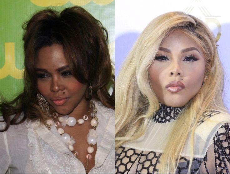 Lil Kim Is Still Battling Skin Bleaching Rumors -