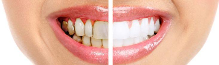 ¿Cómo sé si tengo enfermedad de las encías? Los síntomas de la enfermedad de las encías incluyen: Mal aliento constante Encías rojas o inflamadas Encías  que sangran Dolor al masticar Dientes flojos Dientes sensibles Encías retraídas o dientes que se ven más largos de lo normal. Cualquiera de estos síntomas puede ser una señal de un problema grave que debe ser examinado por un dentista.