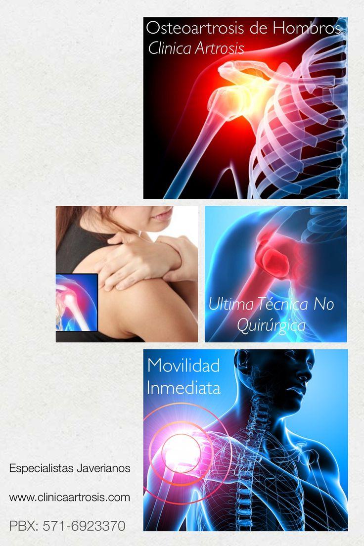 La artrosis de hombro es la degeneración de la articulación del hombro. Básicamente consiste en la pérdida del cartílago articular, la formación de osteofitos. Visite a nuestros médicos especialistas en la Clínica de Artrosis y Osteoporosis www.clinicaartrosis.com PBX: 6836020. Bogotá, Colombia.