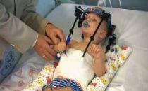 Başı Kopan 16 Aylık Bebek Hayata Tutundu