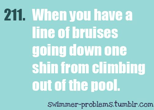 I have like permanent bruises from that!!! And people are always like... what did u do to ur legs