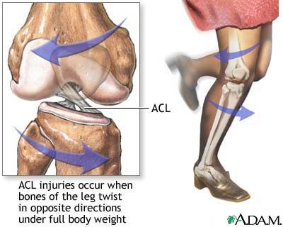 Soccer Performance: ACL Injury Prevention
