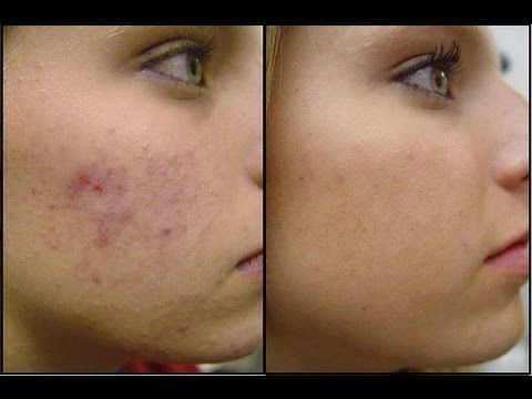 How To Cure Acne Naturally - Best Treatment for Acne - http://thetreatmentherbs.com/how-to-cure-acne-naturally-best-treatment-for-acne/