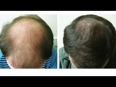 Супер-рецепт для волос, начинают расти даже на лысинах! - YouTube