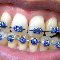 Tips for Adults Who Have Braces on Teeth
