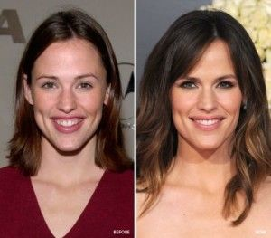 Top 10 Celebrity Cosmetic Dental Surgery Before and After Photos of Jennifer Garner