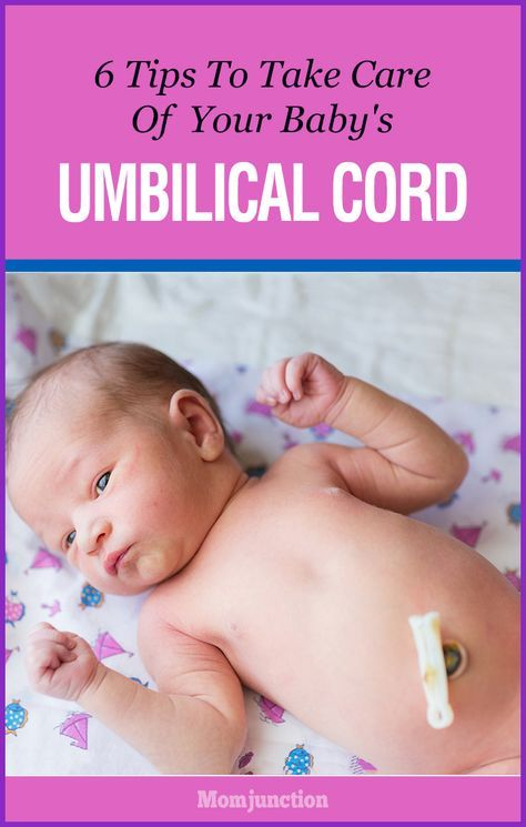Need some tips on umbilical cord care in newborns? Yes, Here we've some information on how to take care of your baby's umbilical cord. Read on to learn more!
