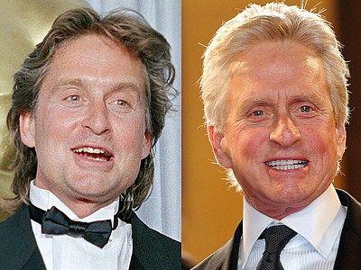 Michael Douglas: sonrisa antes y después