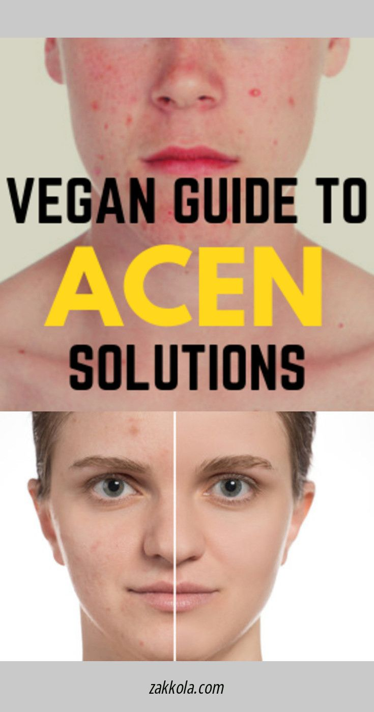 Click on the link to get more information acne. C…