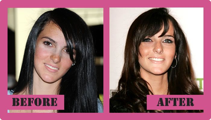 Ali Lohan Plastic Surgery Before And After Ali Lohan Plastic Surgery #AliLohanPlasticSurgery #AliLohan #gossipmagazines