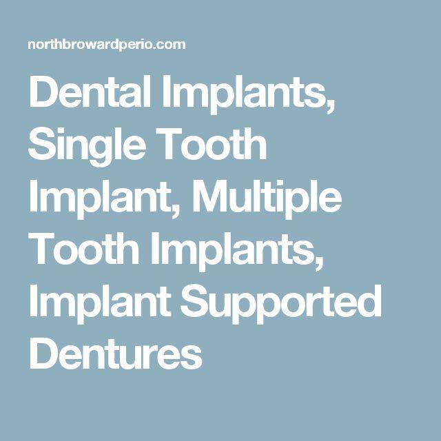 Dental Implants, Single Tooth Implant, Multiple Tooth Implants, Implant Supported Dentures