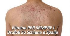 rimedio naturale brufoli spalle schiena
