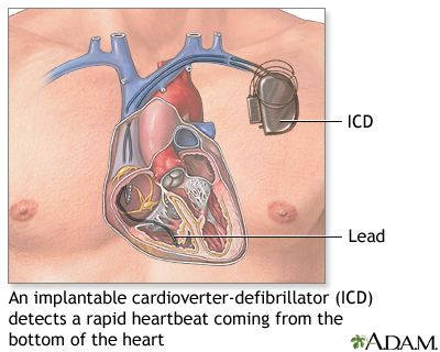 pdf cardiology pacemakers step by step