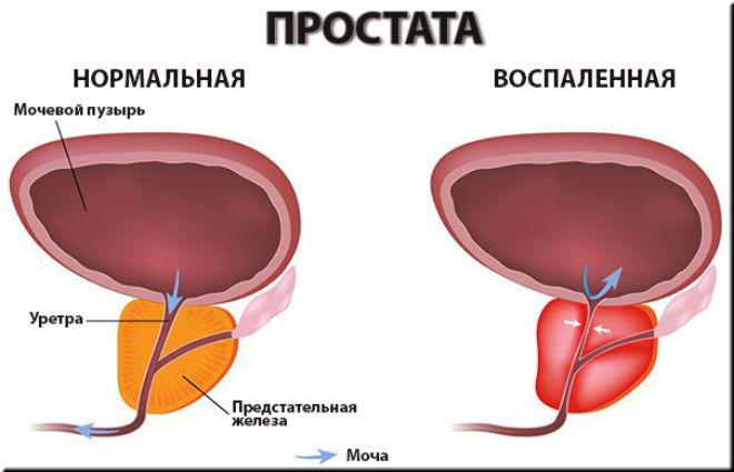 Простатит - воспаление предстательной железы, отек тканей.  Какие признаки способствуют выявлению простатита у мужчин.  У больного диагностируются боли внизу живота, ближе к мошонке. Скудные и болезненные мочеиспускания. Расстройство половой функции организма, расстройство эякуляции. Проверенный источникутверждает, что в данной ситуации не стоит опускать рук. Выход есть, и это IronProst.  Причины при которых может возникнуть простатит у больного.  1. Простатит может возникнуть с помощью…