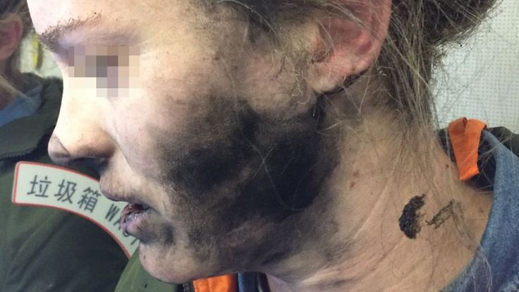 Australia warns about the dangers of battery-powered devices after a woman is left with blisters.