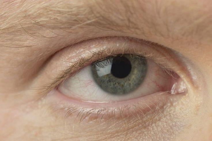 Cómo tratar una infección en el ojo | Muy Fitness