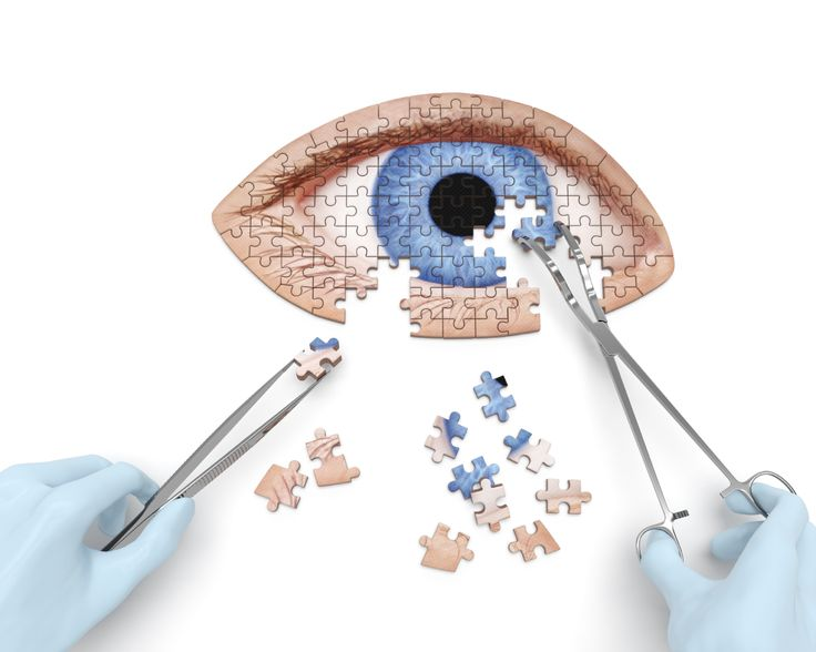 Could There Be Another Option for Cataract Treatment Besides Surgery? | Laguna Hills Home Care