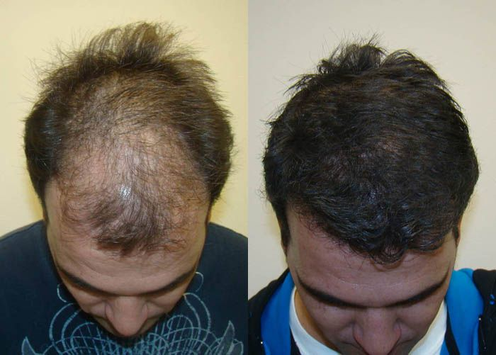 Hair transplant cost is costly but if anyone interested the best hair transplant treatment in very nominal prices then you can visit our website. Firstly you can check our prices as compared to other clinics in india we provide the entire course at very genuine prices