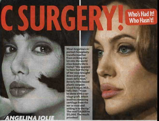 angelina_jolie_plastic surgery before and after 5