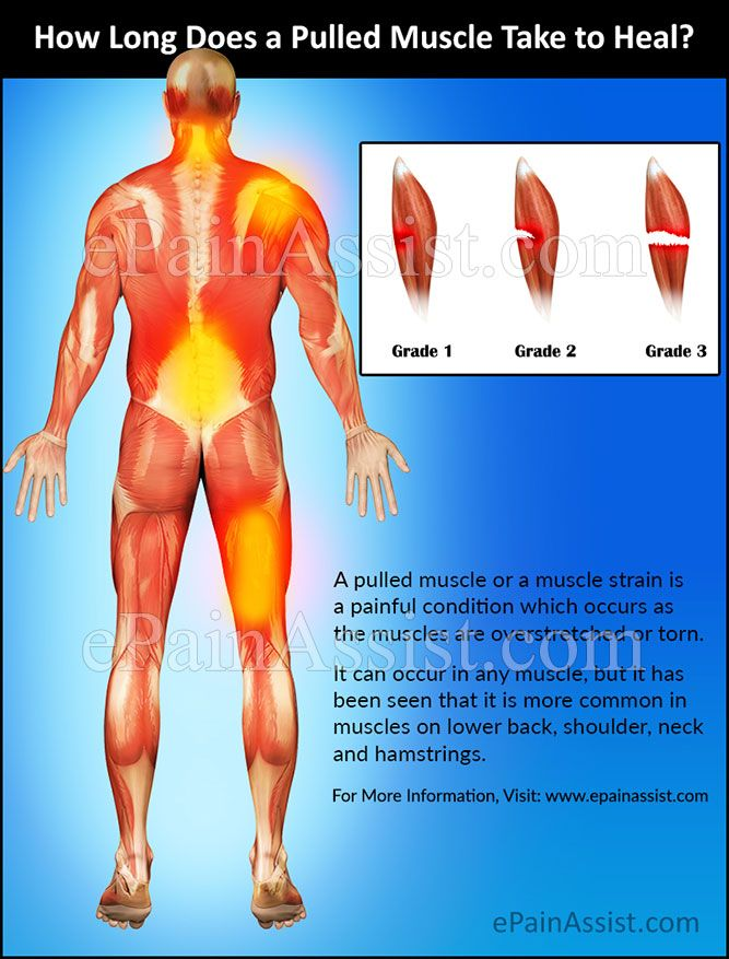17 Best Ideas About Pulled Muscle Symptoms On Pinterest