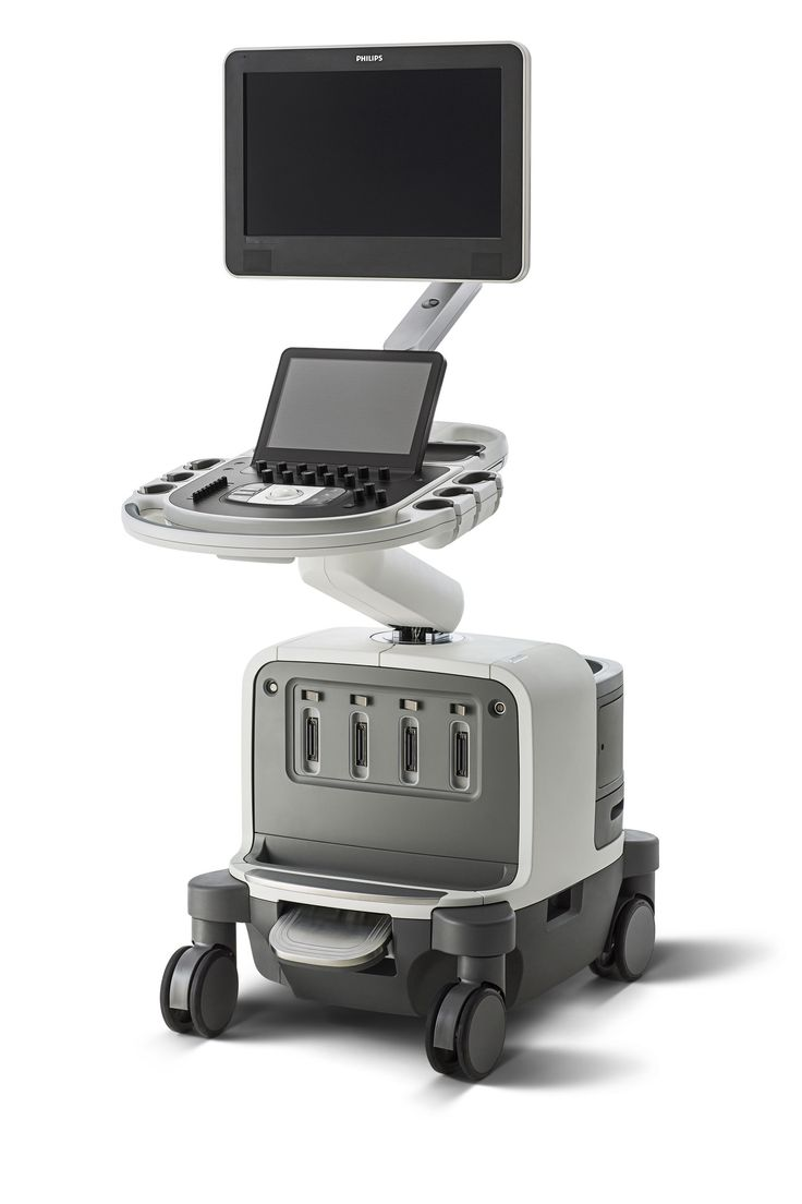 For more information read the backgrounder Inside Innovation - EPIQ ultrasound