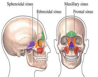 sinusitis home remedie | Sinus Headache Home Remedy Relief