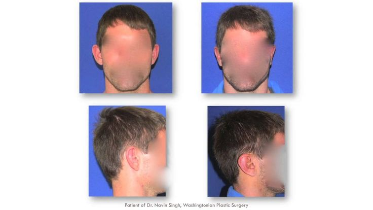 Ear Pinning, Otoplasty, Washingtonian Plastic Surgery Dr. Navin Singh