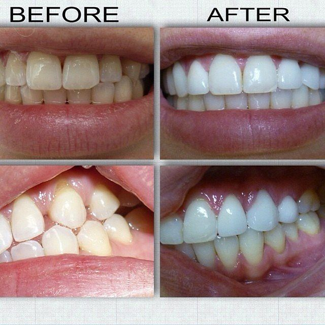 "142 Me gusta, 3 comentarios - COSMETIC DENTISTRY™ (@cosmeticdentists) en Instagram: ""Wonderful Smile Makeover!! @thepracticebeverlyhills ・・・ Great case we just finished! Bleaching, 2…"""