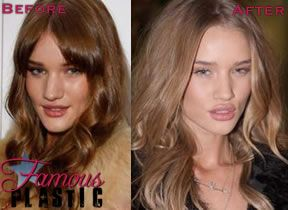 Rosie Huntington Whitely Had Plastic Surgery / Nose Job / Lip Injections