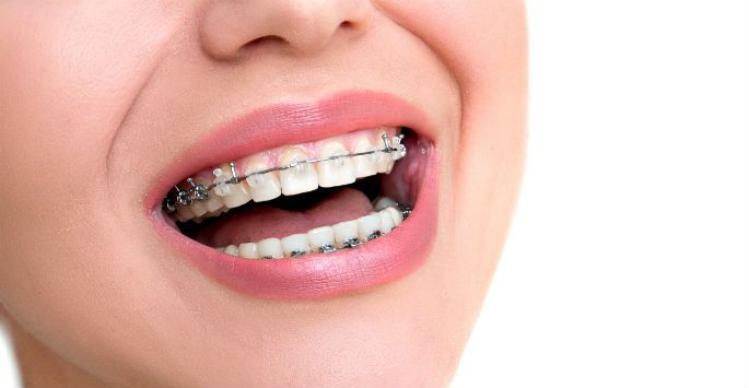 Damon Braces is the best way to improve smile and many benefits of Damon Braces for oral health- Less Treatment Time, faster than conventional braces, More Comfort, Fewer Adjustments and Fewer Orthodontic Appointments. Schedule your appointment online with spring orthodontics specialist near you.