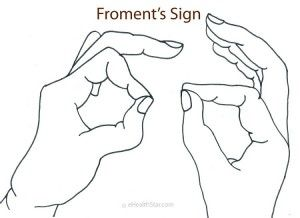 Froment's sign speaks for a damage of the ulnar nerve in the wrist (Guyon's canal syndrome) or elbow (cubital canal syndrome). http://ehealthstar.com/test/froments-sign