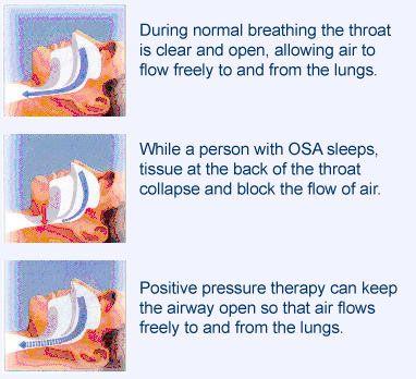 Sleep Apnea - See more sleep apnea tips at StopSnoringPlease.com