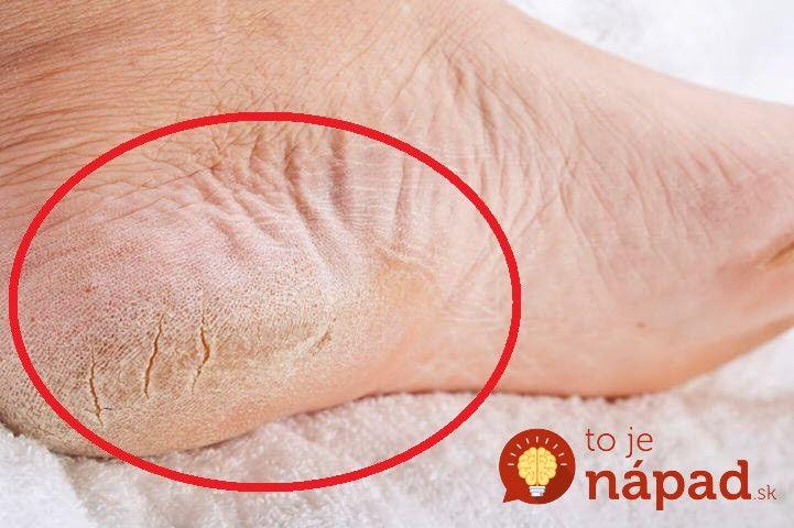 Suchú a popraskanú kožu môžete odstrániť jednoduchšie, ako sa zdá. Pomôže jednoduchý domáci trik.