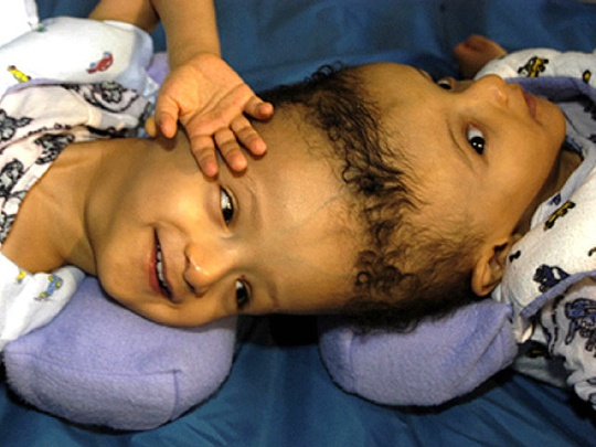 Ahmed and Mohamed Ibrahim.: Dallas Texas, Conjoined Twins, Egyptian Twin, Undat Photos, Photos Graphics, Twin Ahm, 40 Amazing, Graphics Image, Amazing Photos