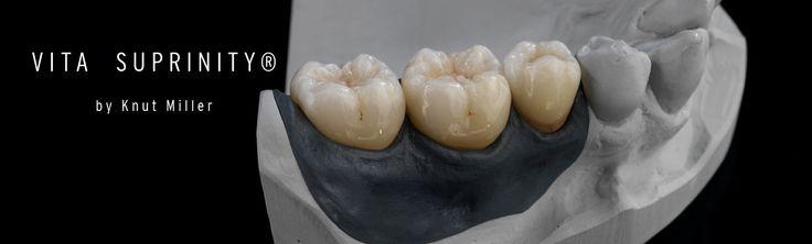 VITA SUPRINITY® - Zirconium dioxide-reinforced lithium silicate ceramic