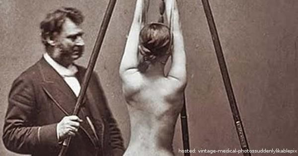 These 10 Vintage Medical Photos Are Downright Scary