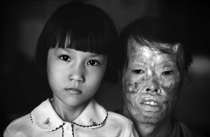 Philip Jones Griffiths, This woman, badly disfigured during a napalm strike, adopted this girl as a baby. The child was orphaned when her family died in an American attack. Vietnam, 1981