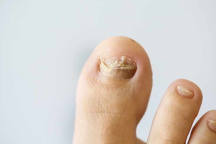 Do you suffer from nail fungus?  All the information you need to know about this topic.