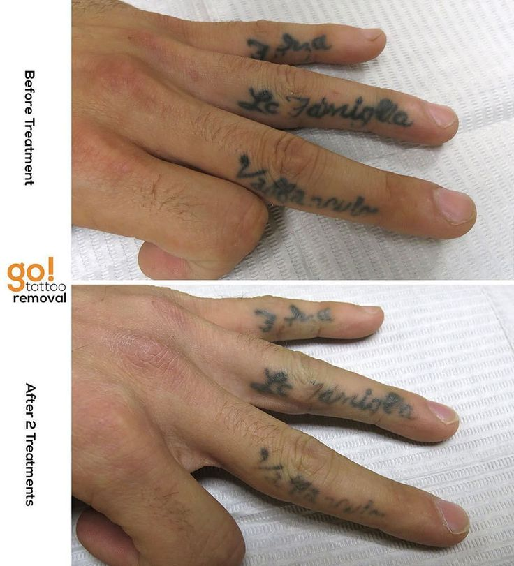696 best images about tattoo removal in progress on for Finger tattoo care instructions