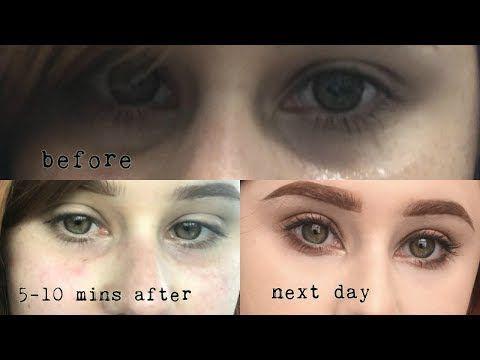 Getting rid of my under eye circles for good   Under eye