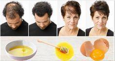 Une recette maison magique pour une pousse rapide des cheveux avec seulement 3 ingrédients   Santé SOS