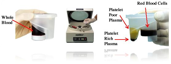 how to get plasma from whole blood