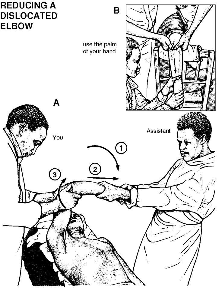 elbow dislocation treatment